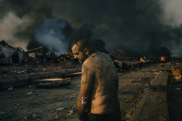 World Press Photo of the Year, nominee: Injured Man After Port Explosion in Beirut © Lorenzo Tugnoli, Italy, Contrasto for The Washington Post